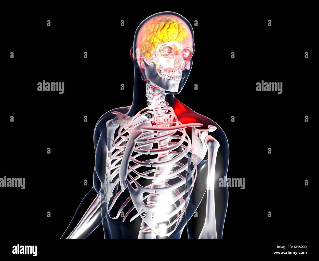 Dolor de cabeza y depresión. Ilustración 3D prestados. Aislados en negro. Imagen De Stock