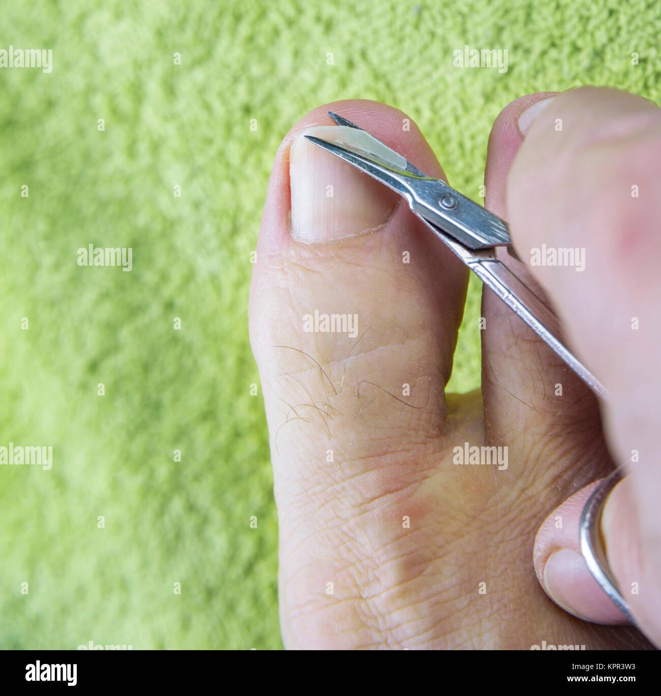 Las uñas de los pies el hombre cortar con tijeras en toalla verde ...
