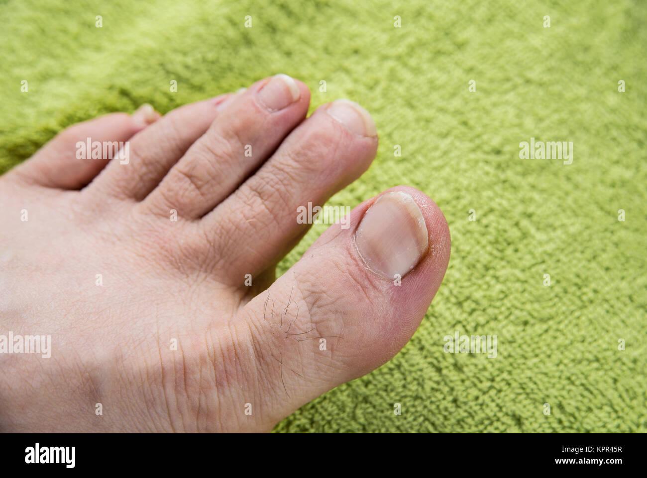 Las uñas sucias en el hombre pies sobre toalla verde Foto & Imagen ...