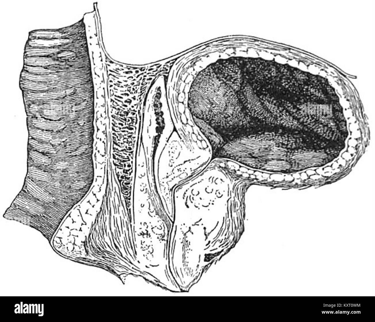 EB1911 Sistema reproductivo, en anatomía - sección de la vejiga, la ...