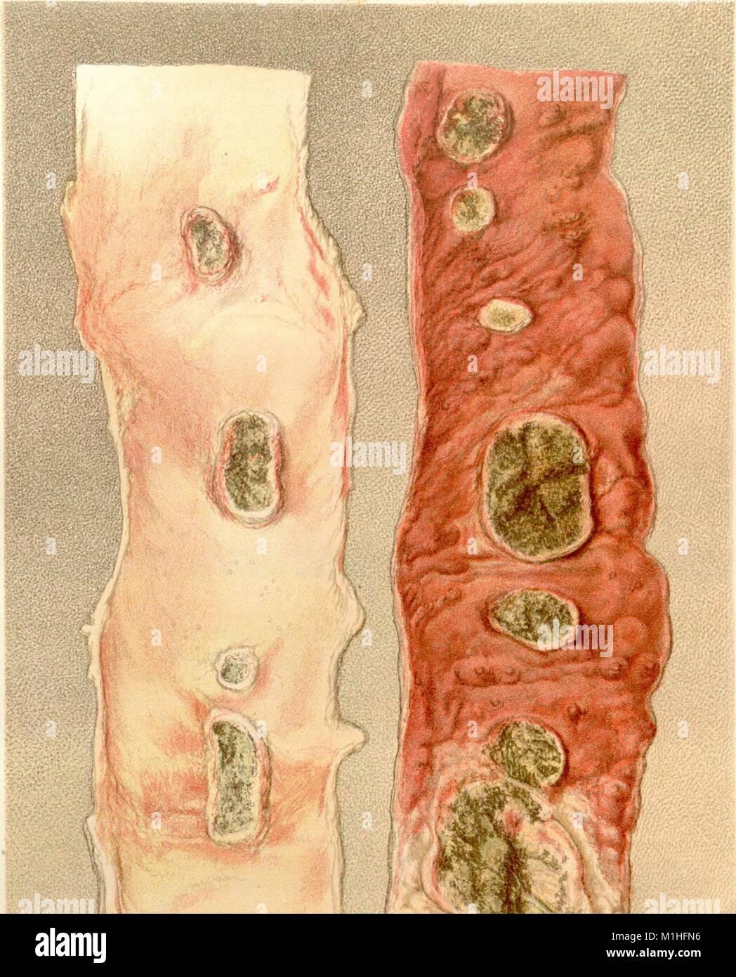 Ilustración en color representando inducida por fiebre tifoidea ulcerada parches en un íleon del paciente, Imagen De Stock