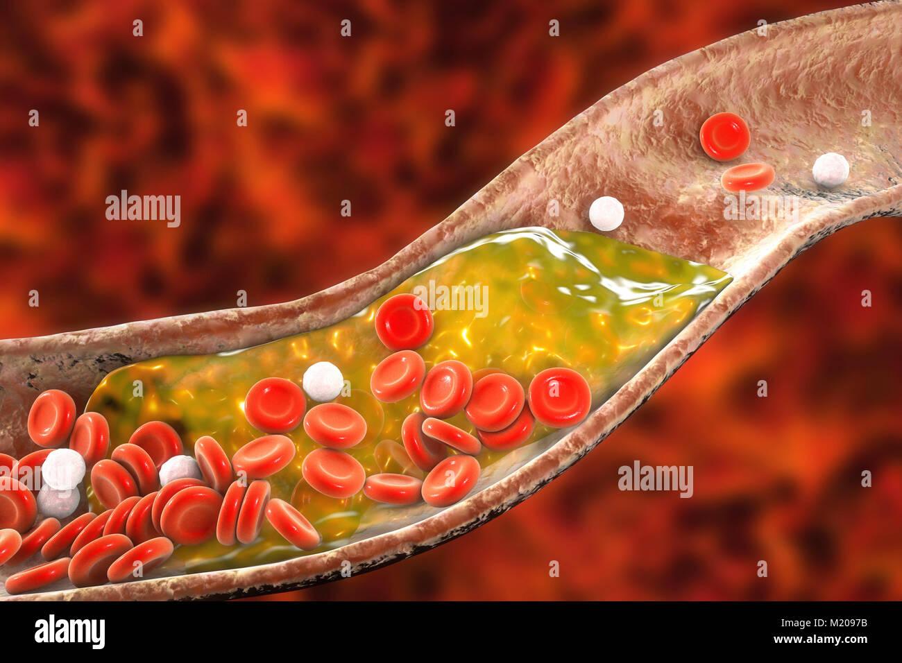 Placa de ateroma dentro de los vasos sanguíneos, el equipo ilustración. Un ateroma colesterol está causando un estrechamiento Foto de stock