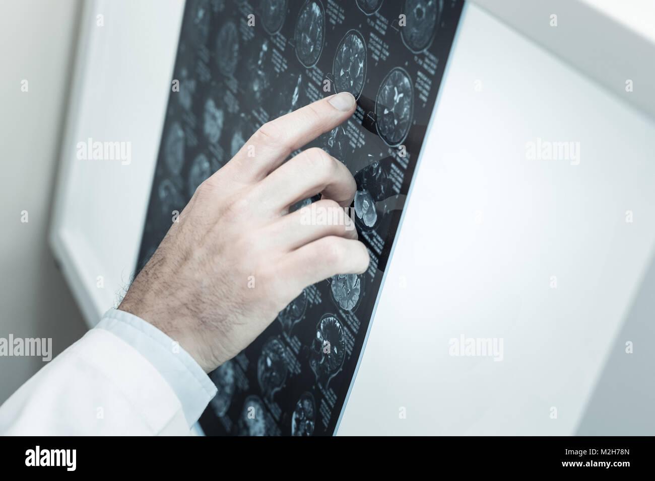 Cierre de un escaneo cerebral de rayos X Foto de stock