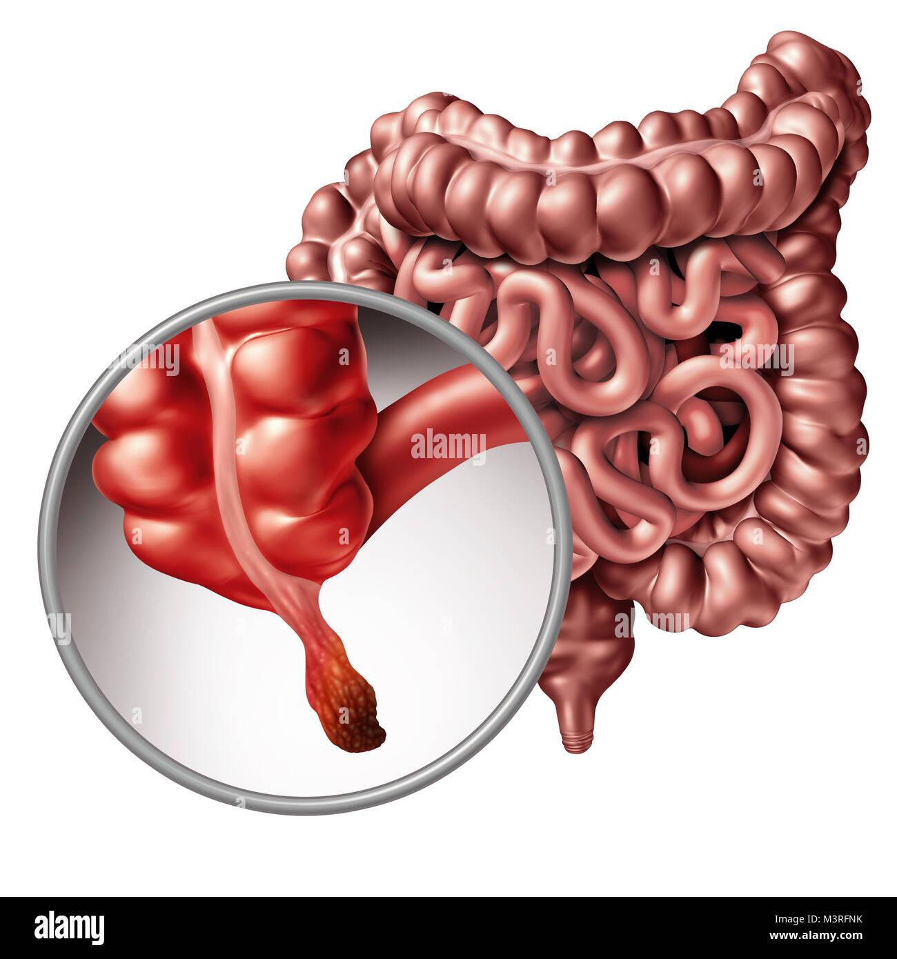 Apendicitis Inflamación del apéndice y el concepto de la enfermedad como un cierre para arriba del intestino humano Foto de stock