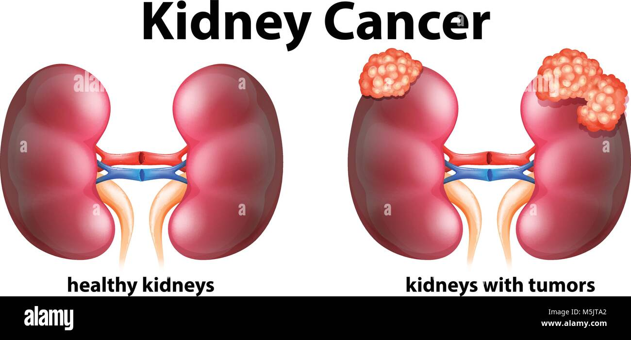 Kidney Cancer Imágenes De Stock & Kidney Cancer Fotos De Stock - Alamy