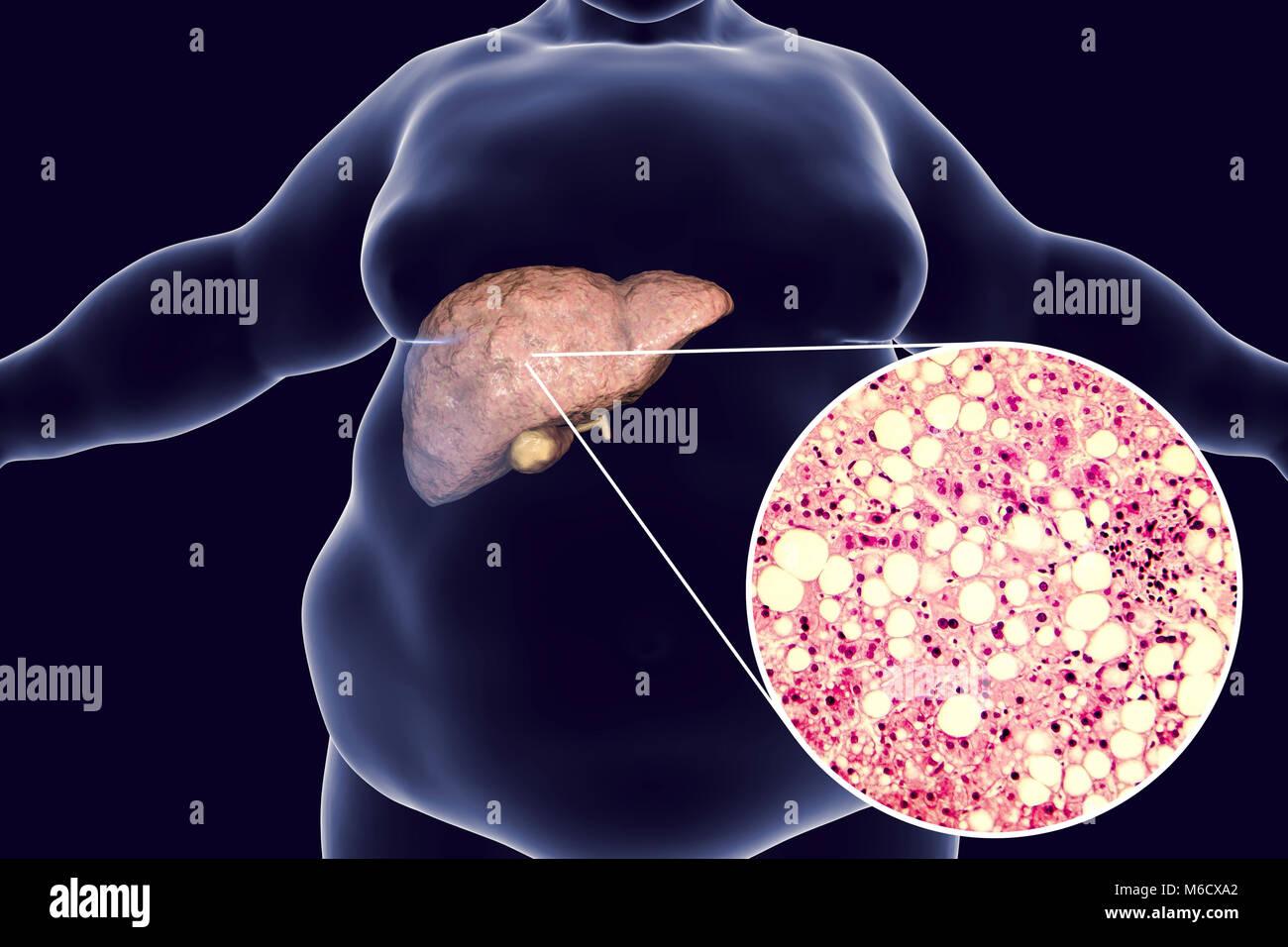 Fatty Liver Imágenes De Stock & Fatty Liver Fotos De Stock - Alamy