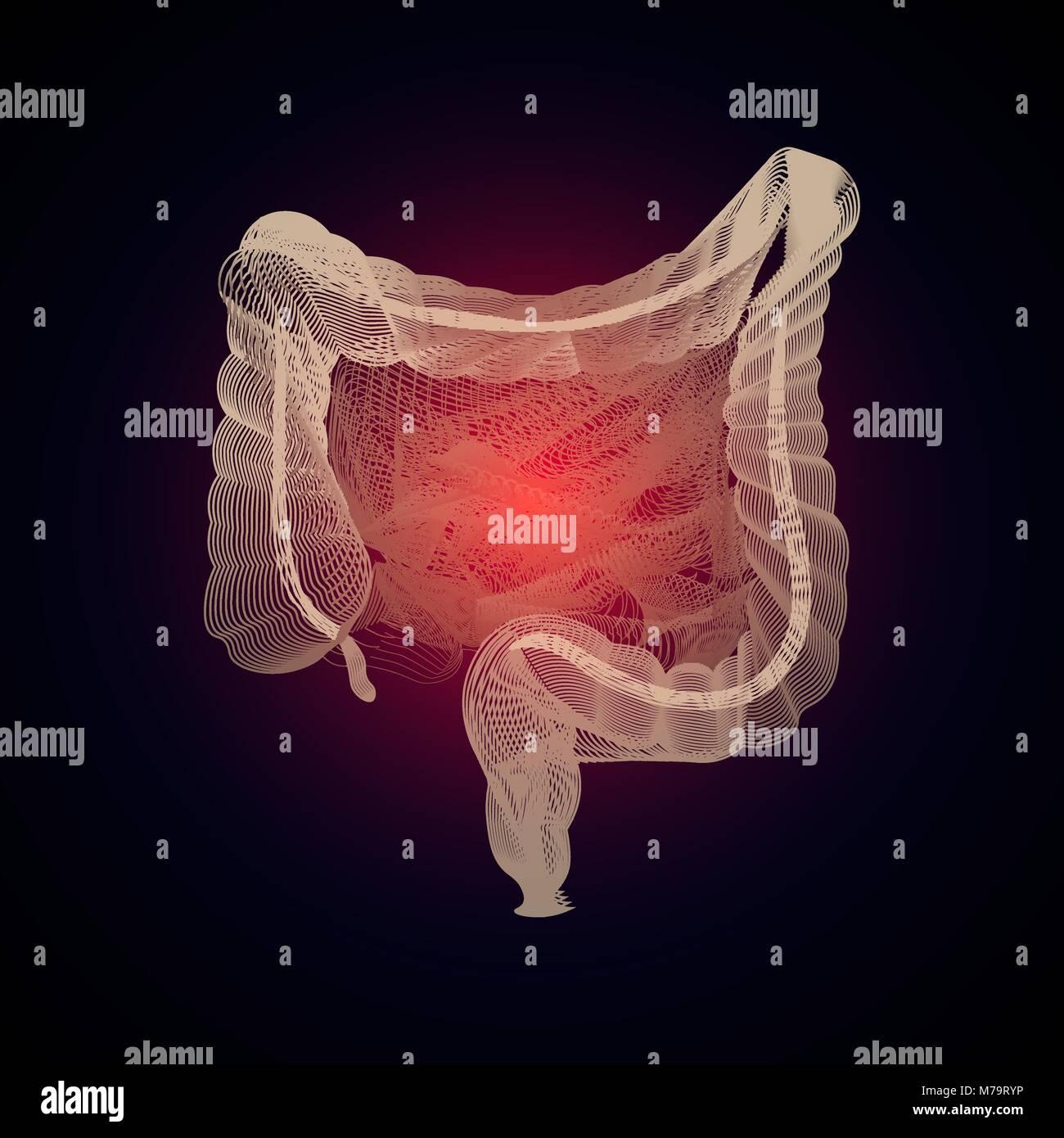 Vector intestinos aislados con dolor central. 3D de organos humanos ...