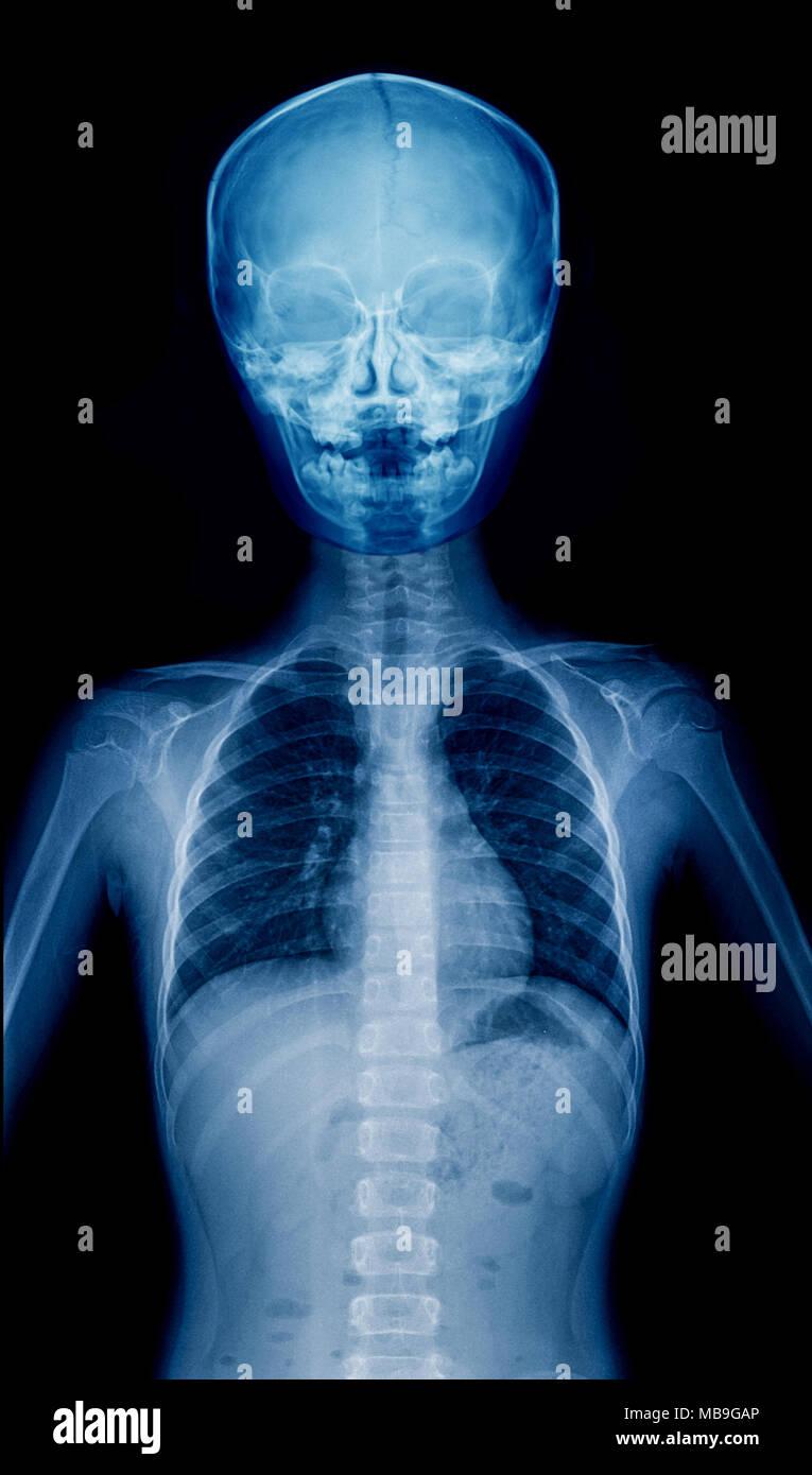X-ray niño la parte superior del cuerpo, Hight Quality film de niño Imagen De Stock