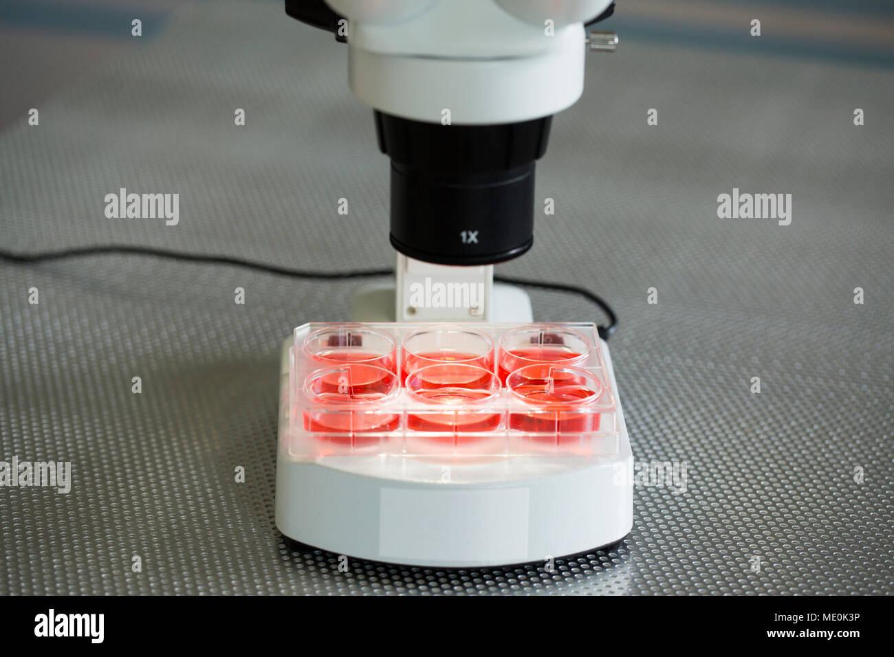 Cultivos de células bajo el microscopio. Foto de stock