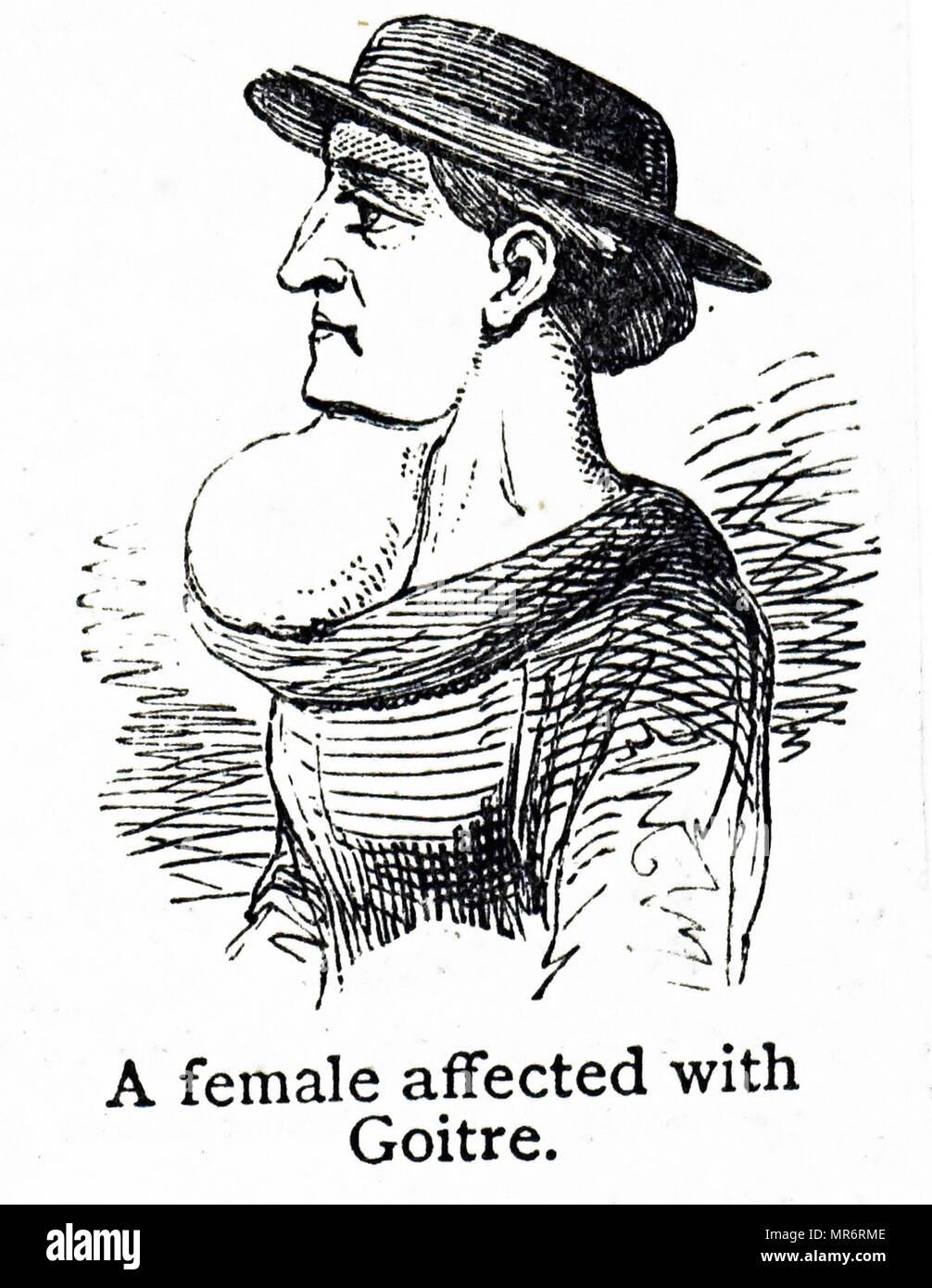 Grabado representando una mujer afectada con bocio. El bocio es la hinchazón del cuello resultante de un agrandamiento de la glándula tiroides. Fecha del siglo XIX Imagen De Stock