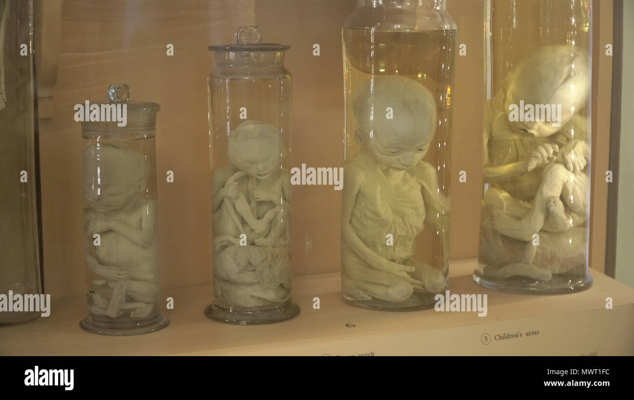 Conservan especímenes anatómicos humanos, fealdad, anomalías. Partes ...