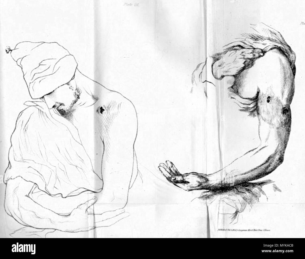 Único Anatomía De Bala Cresta - Imágenes de Anatomía Humana ...