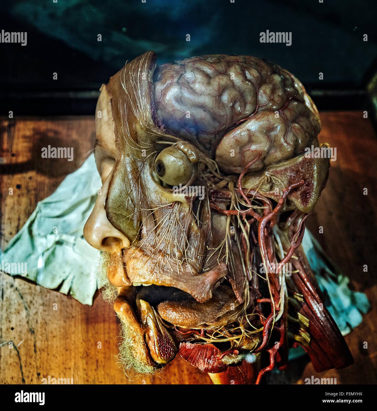 Moderno Cerebro Anatomía De Los Vasos Elaboración - Anatomía de Las ...