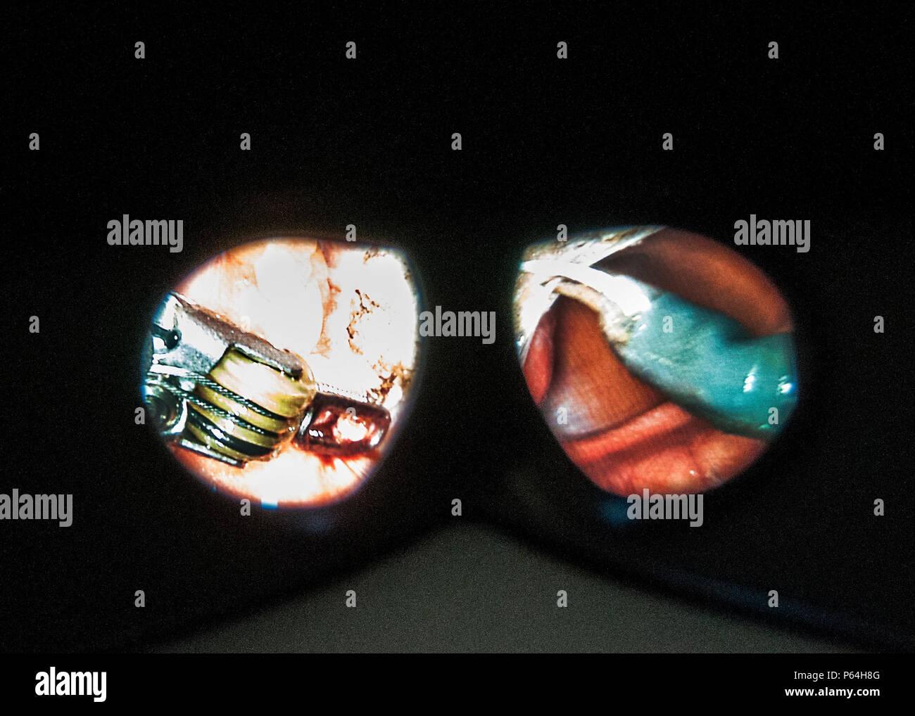 Un punto de vista del cirujano a través de un sistema de imagen 3D muestra la articulación de instrumentos durante una cirugía usando la última state-of-the-art Robotic Surgical System en el William Beaumont Army Medical Center, el 2 de mayo. William Beaumont Army Medical Center realizó la primera cirugía robótica en el Departamento de Defensa utilizando el sistema quirúrgico. El cirujano-manipulado sistema permite a los cirujanos operar con la articulación de instrumentos que se doblan y giran mucho mayor que la muñeca humana a través de una incisión más pequeña que un centímetro. Foto de stock