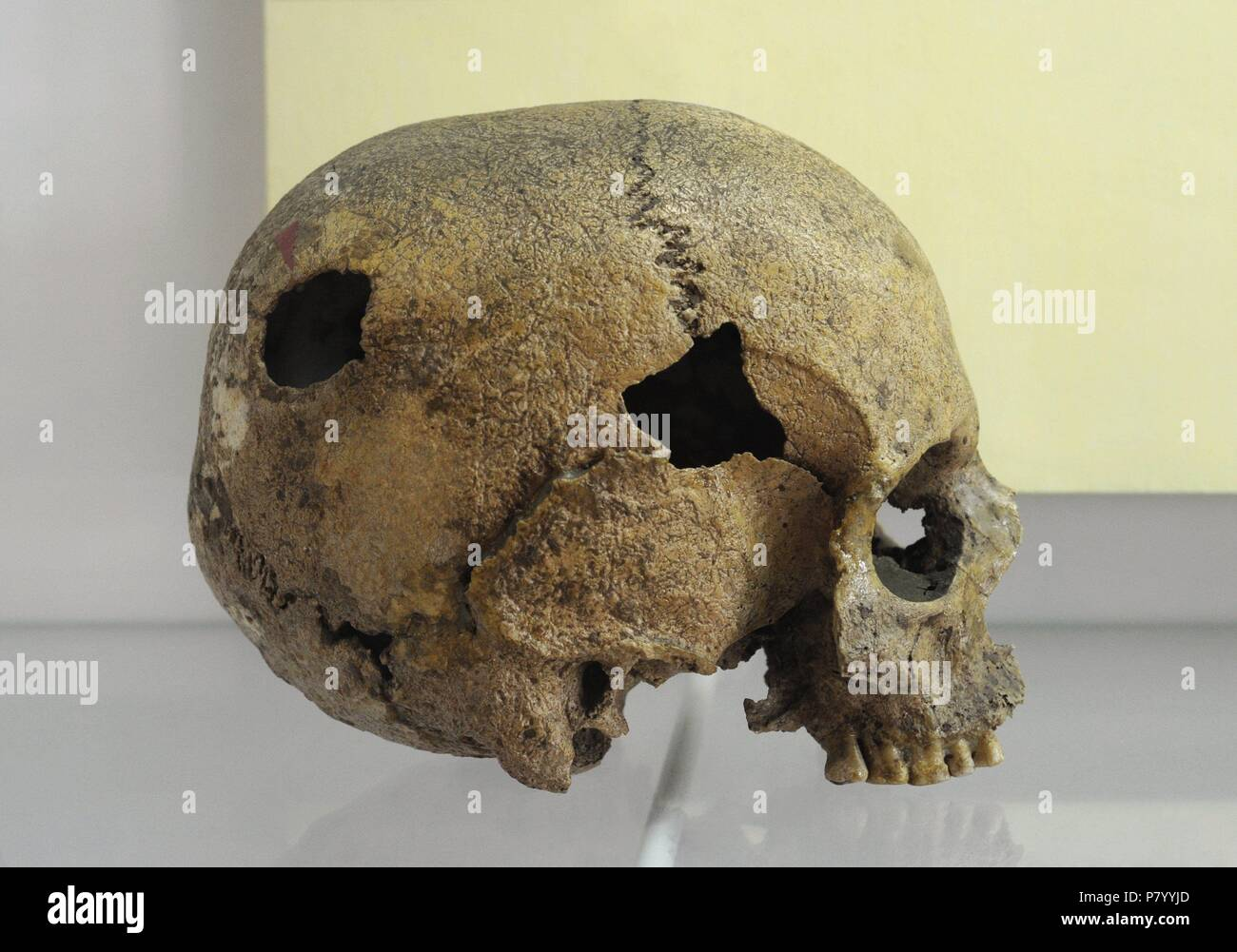 Polonia. En la prehistoria. Cráneo humano marcado con post ...