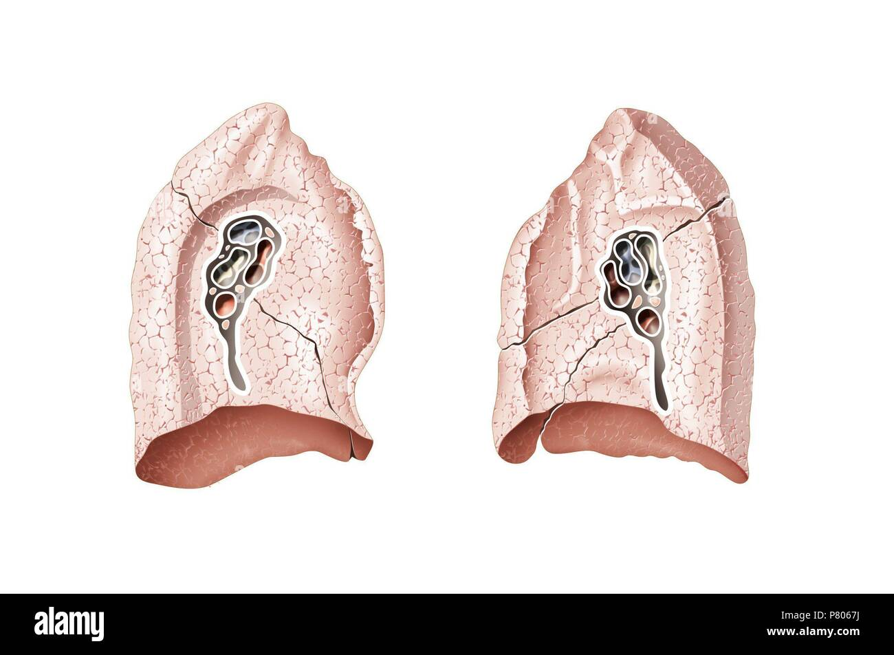 Hilio pulmonar Foto & Imagen De Stock: 211446582 - Alamy