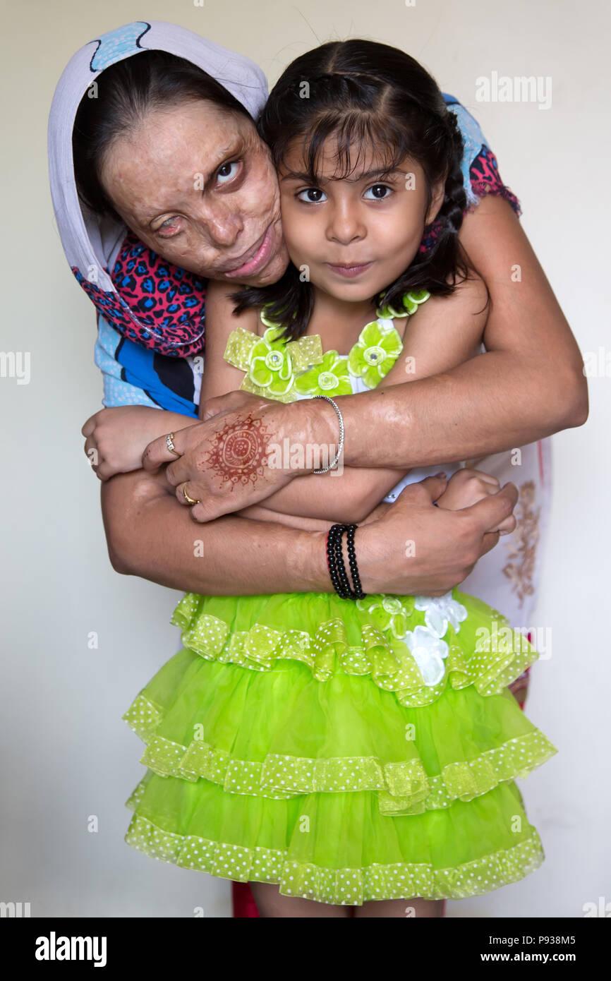 Soniya, víctima de un ataque de ácido en Delhi (de detener los ataques con ácido campaña, India) Imagen De Stock