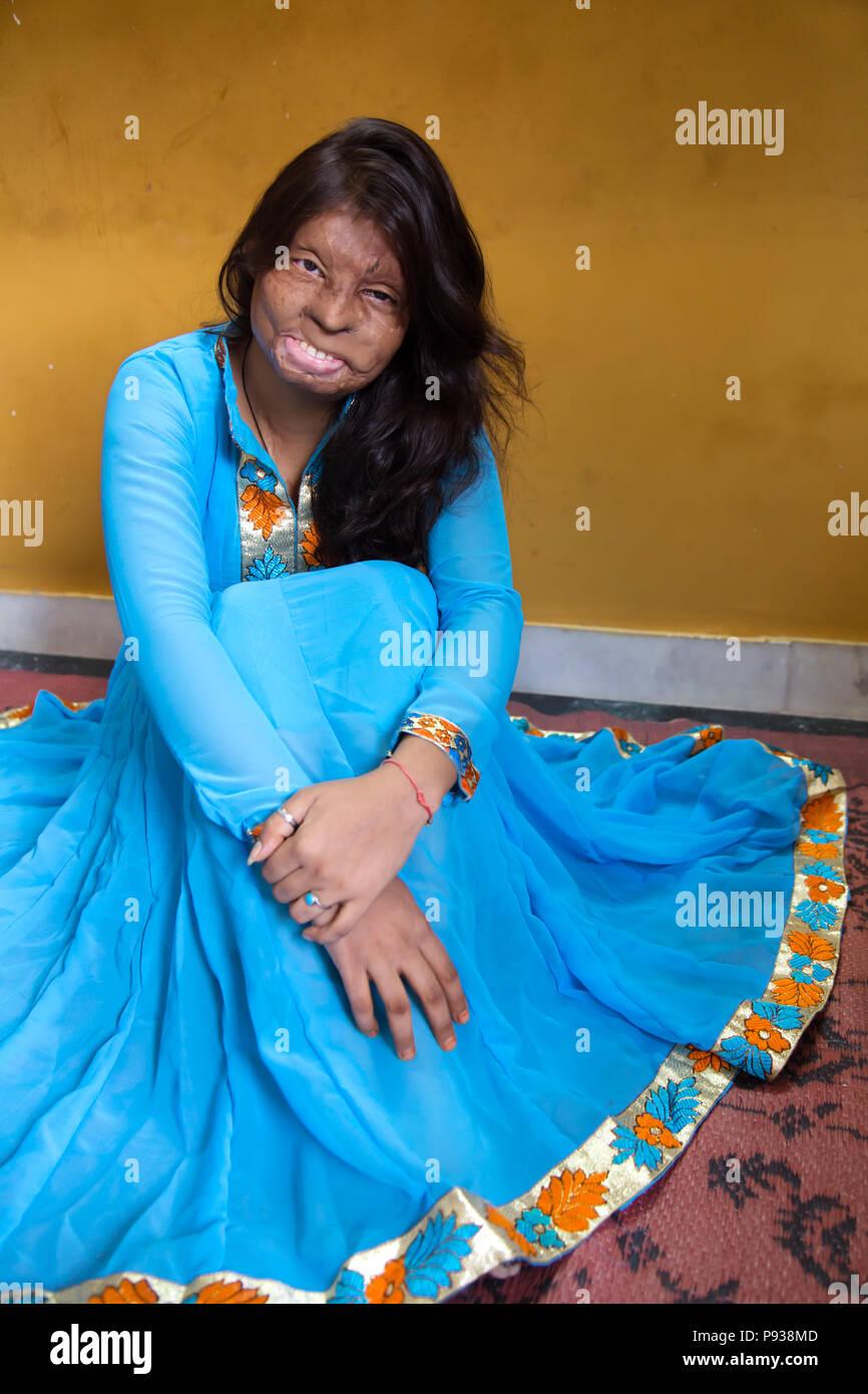 Roopa, víctima de un ataque de ácido en Delhi (de detener los ataques con ácido campaña, India) Imagen De Stock