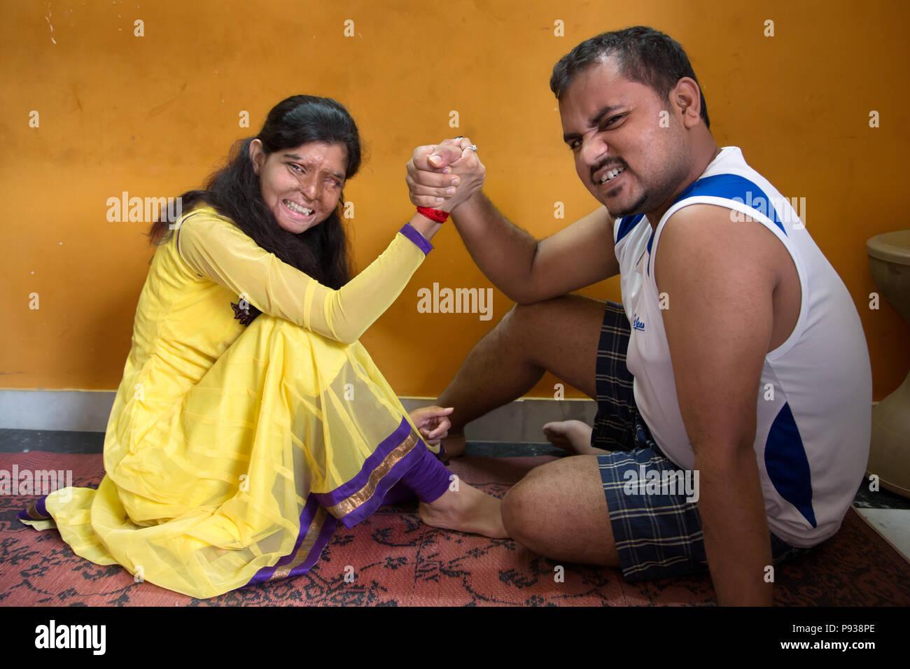Ritu, víctima de un ataque de ácido en Delhi de detener los ataques con ácido campaña, India) Imagen De Stock