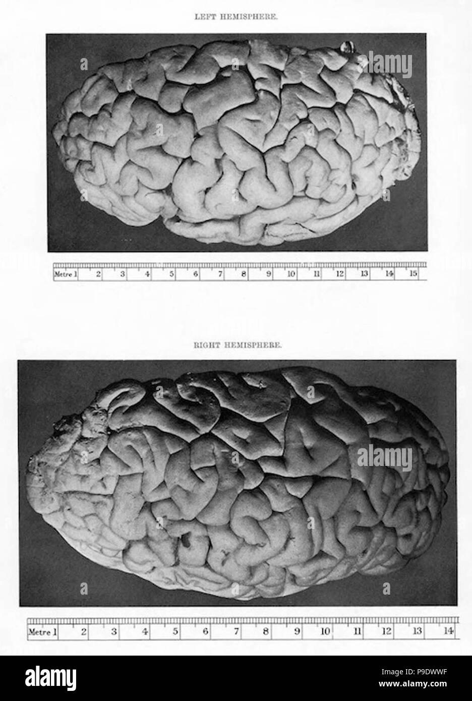 Vintage cerebro fotografía Imagen De Stock