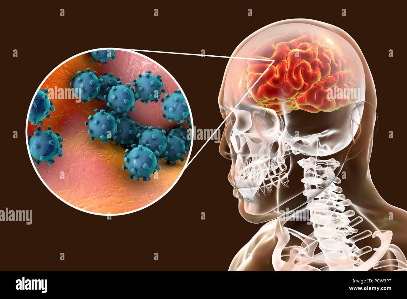 La encefalitis viral. Ilustración conceptual mostrando el cerebro ...