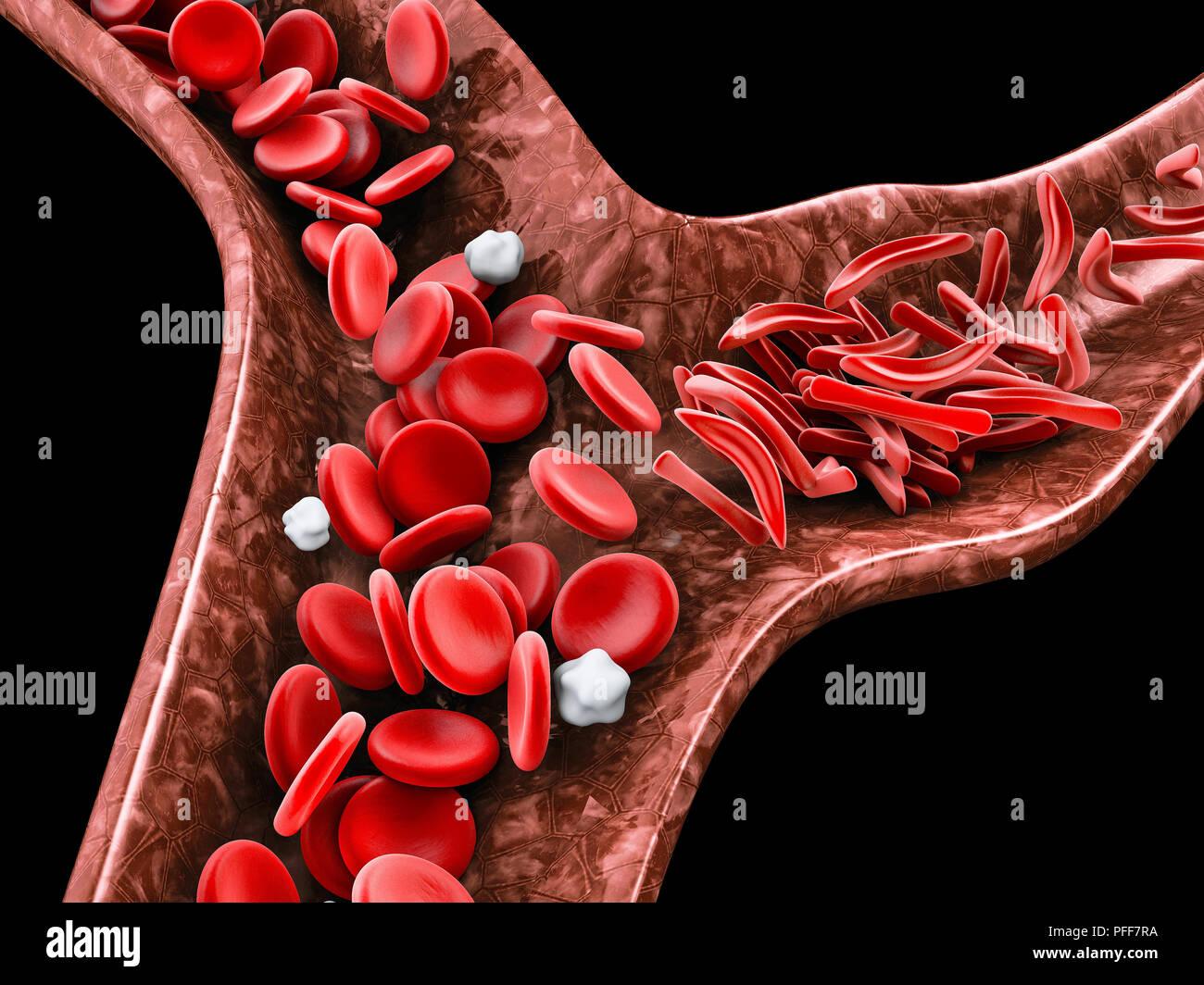 La anemia de células falciformes, 3D ilustración mostrando vasos sanguíneos con normalidad y deformadas crescent Foto de stock