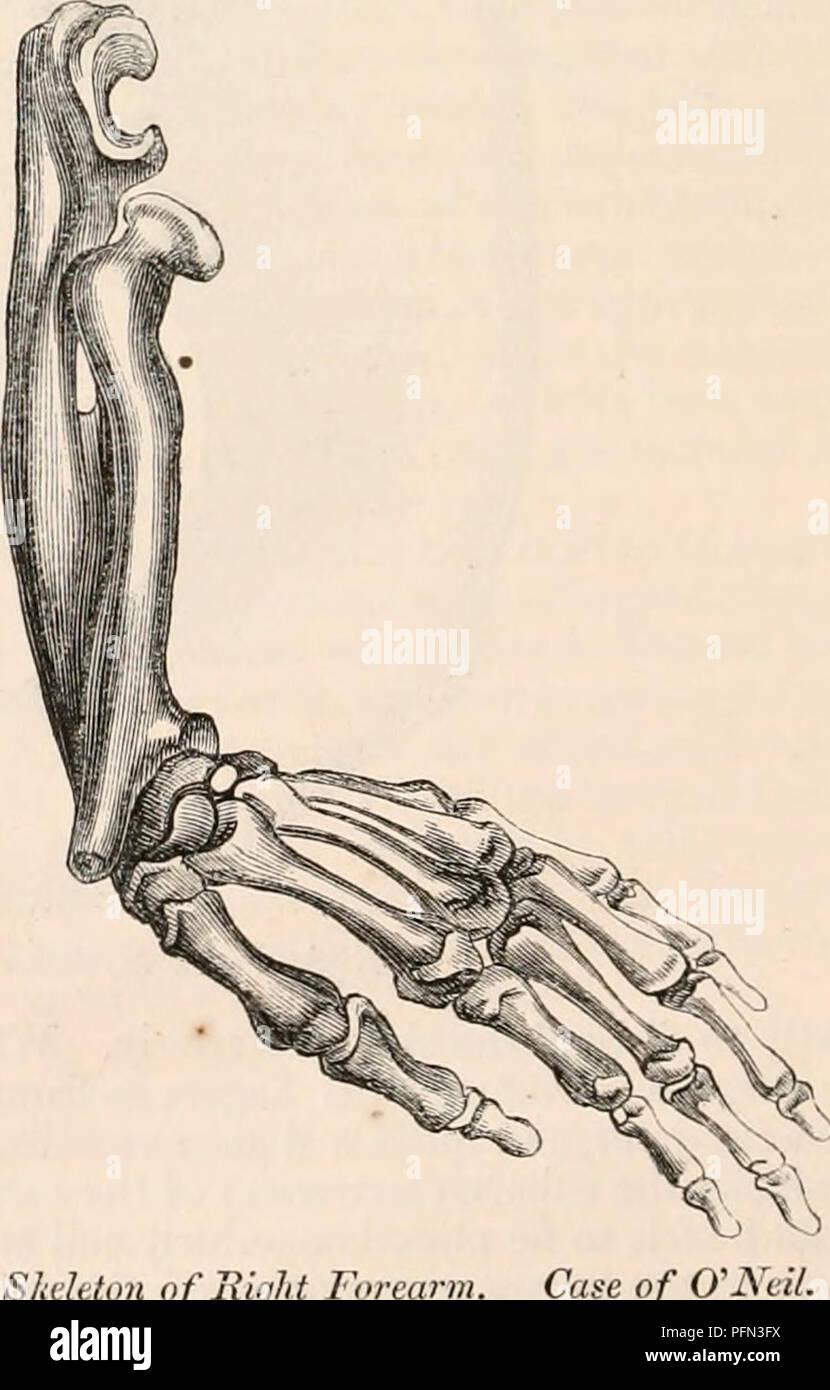 Bones From The Forearm Imágenes De Stock & Bones From The Forearm ...