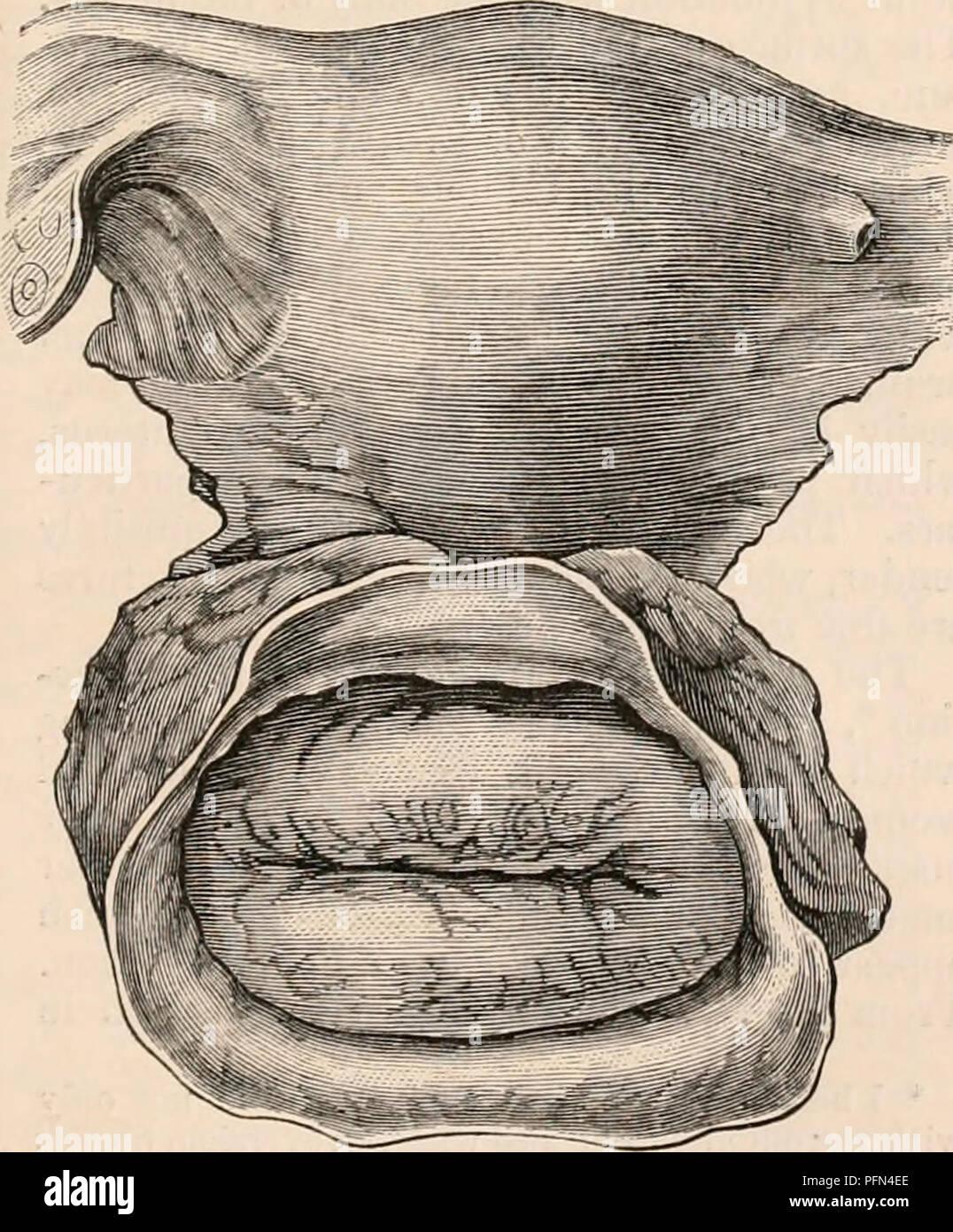 Uterine Cervix Imágenes De Stock & Uterine Cervix Fotos De Stock - Alamy