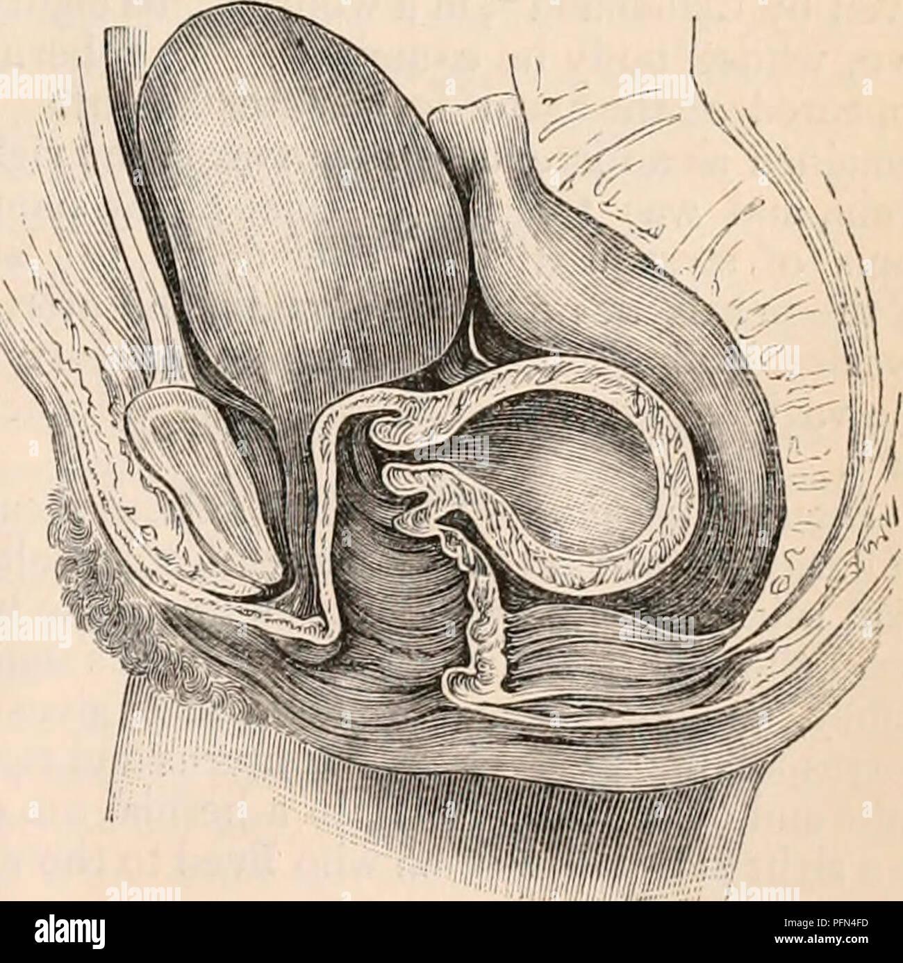 Fundus Of Uterus Imágenes De Stock & Fundus Of Uterus Fotos De Stock ...