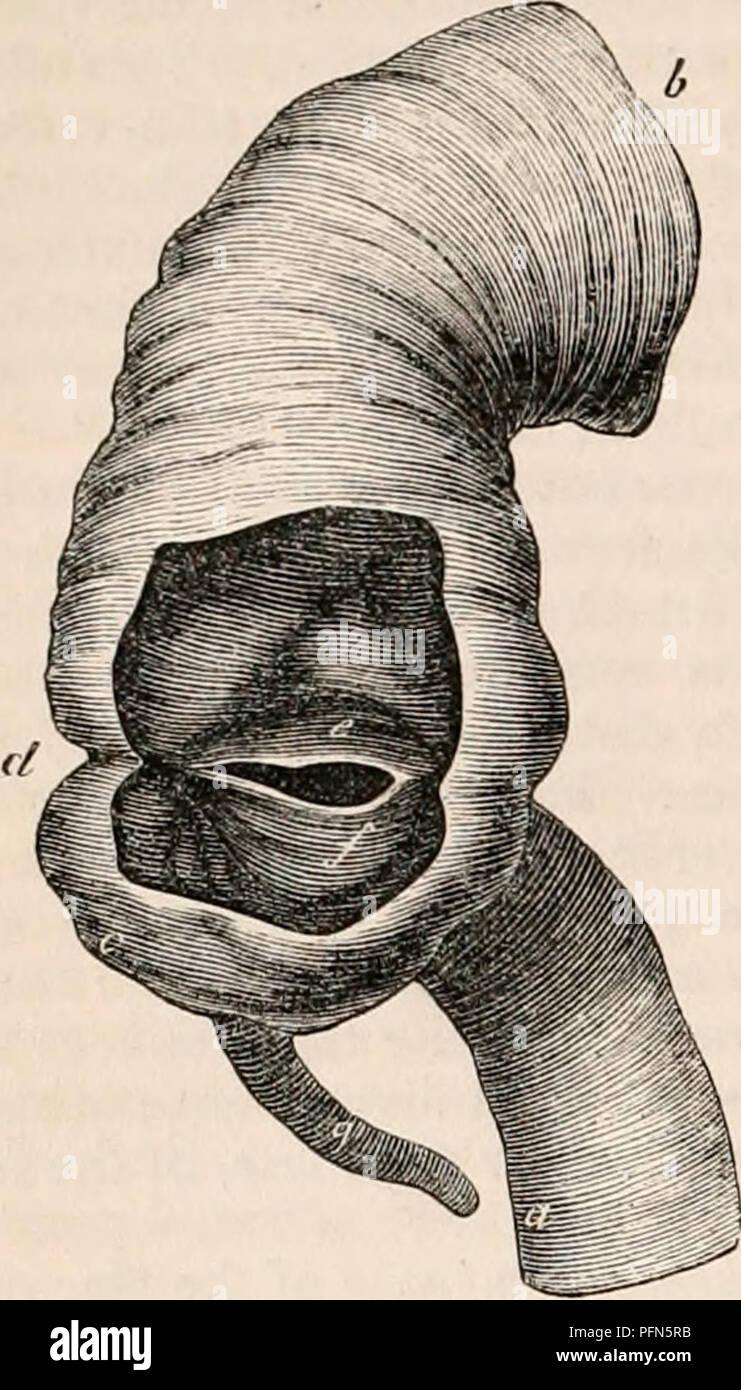 Vermiform Appendix Imágenes De Stock & Vermiform Appendix Fotos De ...