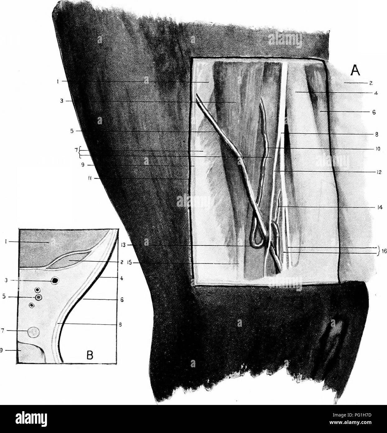 Posterior Tibial Artery Imágenes De Stock & Posterior Tibial Artery ...