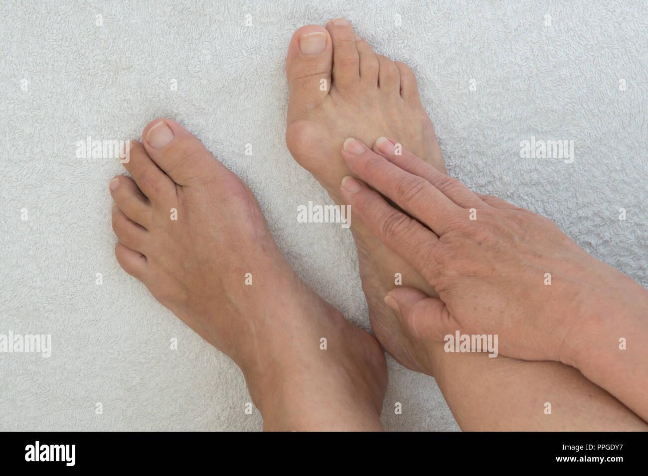 Joint Swelling Imágenes De Stock Joint Swelling Fotos De Stock Alamy