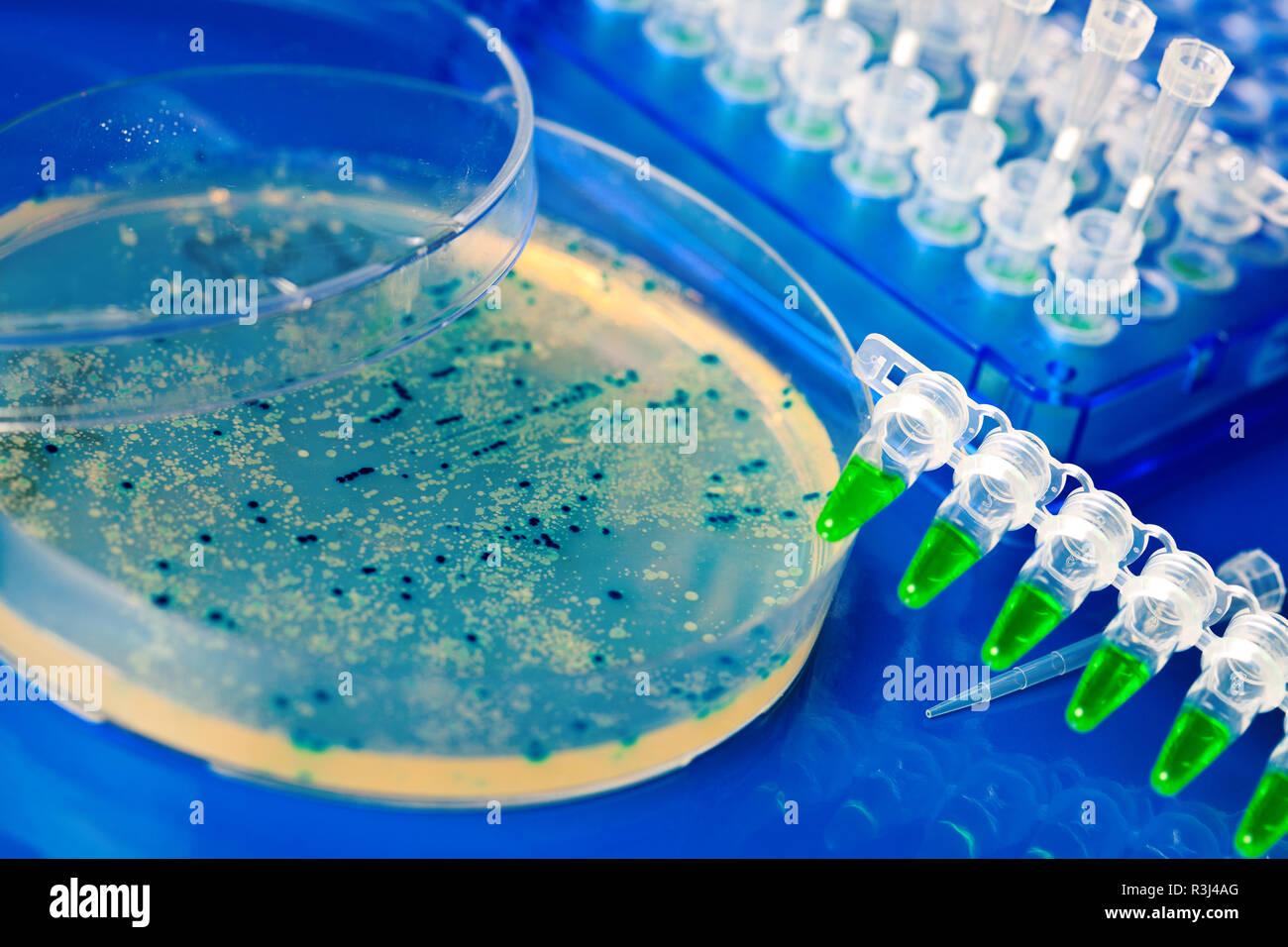 Placa de Petri con el crecimiento de los virus y las células bacterianas. micro orga Foto de stock