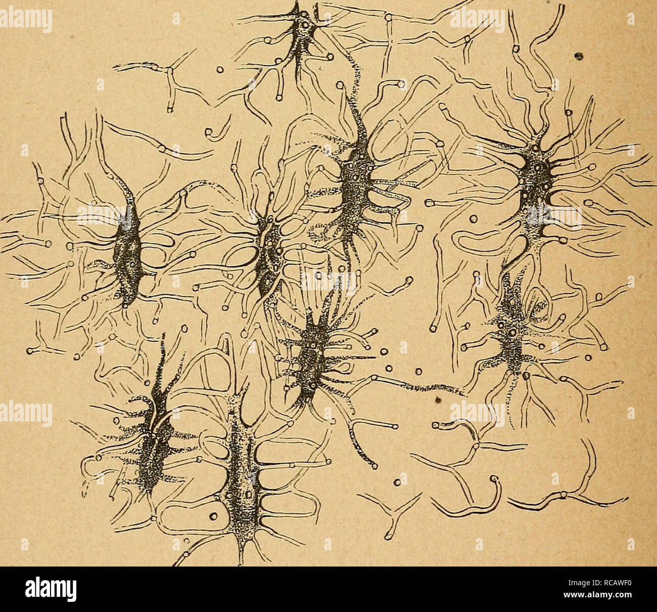 """. Eléments d'anatomie et de physiologie et obstétricale précédes génitale; de la descripción sommaire du corps humain"""" a l'usage des sages-femmes. Reproducción; feto. Fi£Ç.. Fig. 5. - Corpuscules osseux. Dans la figura 4 en voit les ostéoplastes au milieu de la sustancia osseuse avec leurs ramificaciones représentées par les petits rasgos noirs qui ne rayonnent. Les lignes longitudinales indiquent les laminillas sueltas du tissu osseux. Dans la figura 5, les corpuscules osseux ont été isolés, voit très nettement et de leur disposición avec les canaux qui ne partent et les unissent entre eux. d'une infini Foto de stock"""