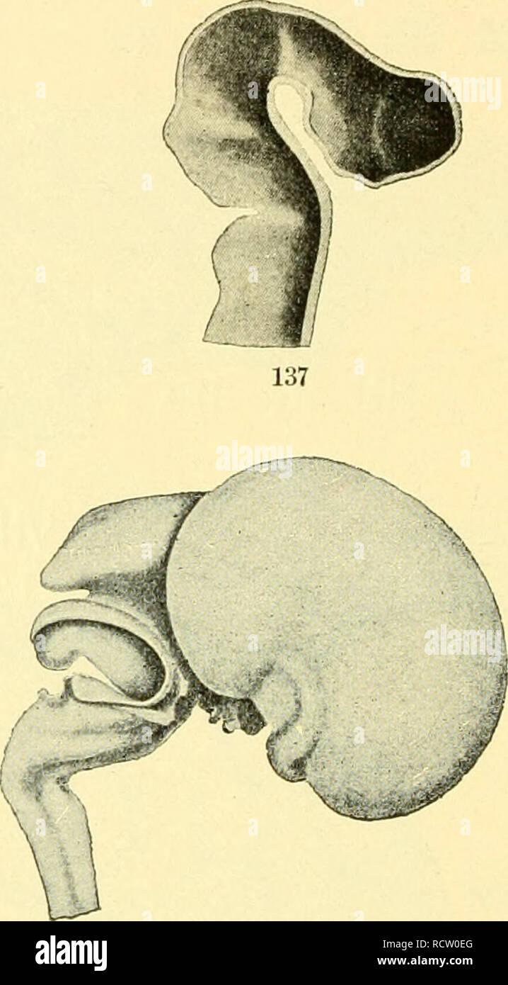 Muskeln des Menschen Lithographie 1896 alte historische Grafik