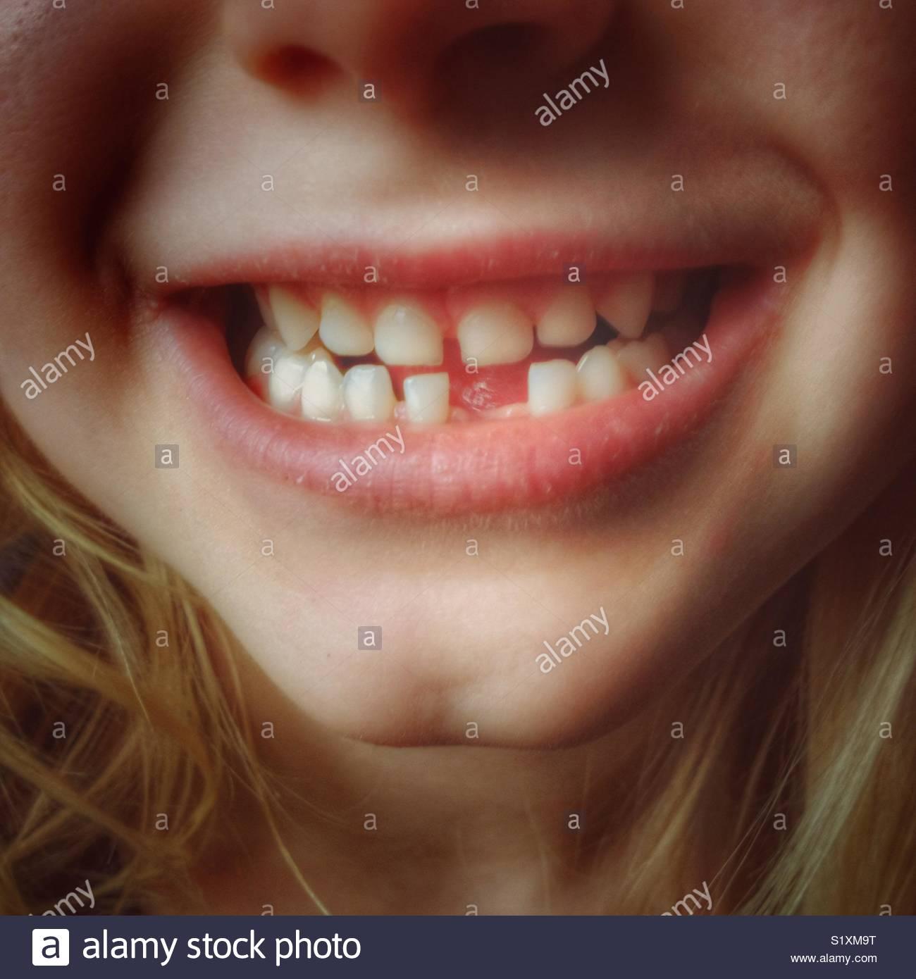 Niño con falta de diente frontal closeup Foto de stock