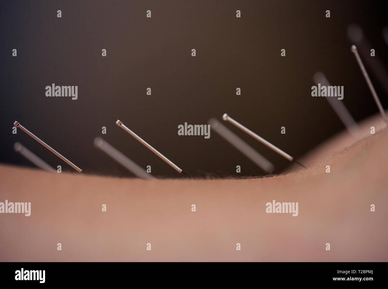 Las agujas de acupuntura en la espalda de una mujer. Imagen De Stock