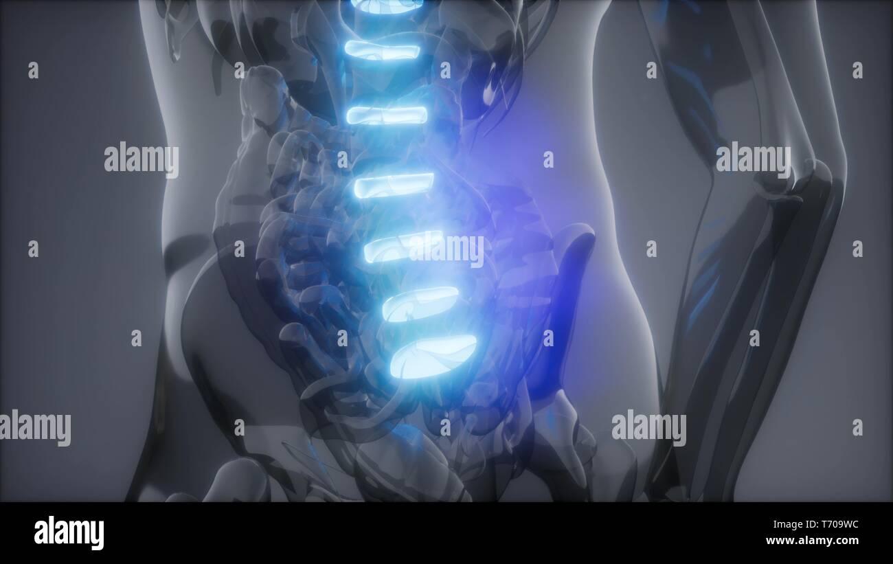 Lastimar la columna vertebral. Backbone masculinos. Dolor de espalda Imagen De Stock