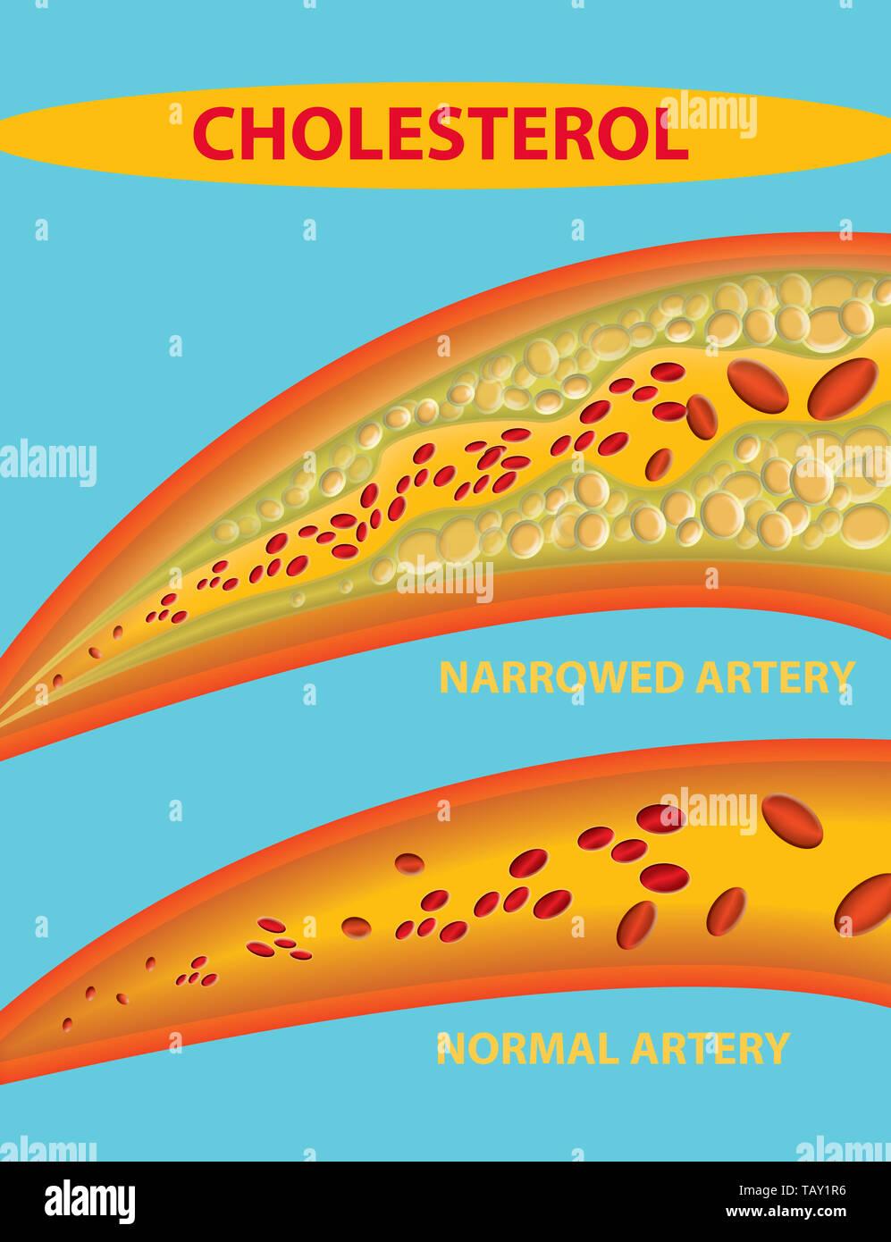 Arteria - vaso sanguíneo bloqueado con el colesterol Foto de stock