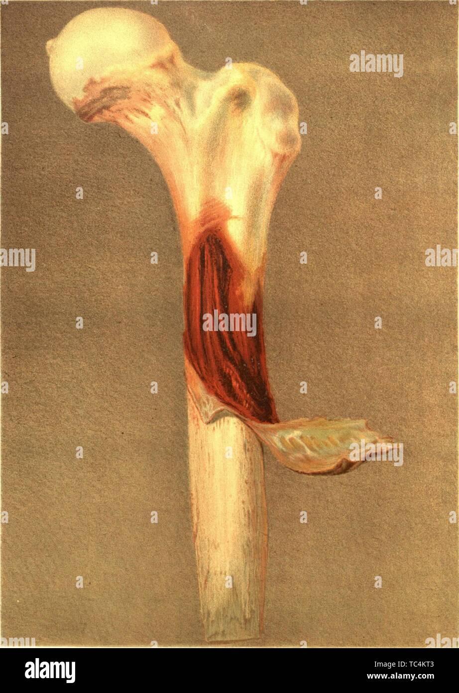 """Grabado del tocón enfermas del fémur, del libro """"El médico y quirúrgico de la historia de la guerra de la rebelión"""" por el ejército de los EE.UU. la Oficina del Cirujano General, 1883. Cortesía de Internet Archive. () Imagen De Stock"""