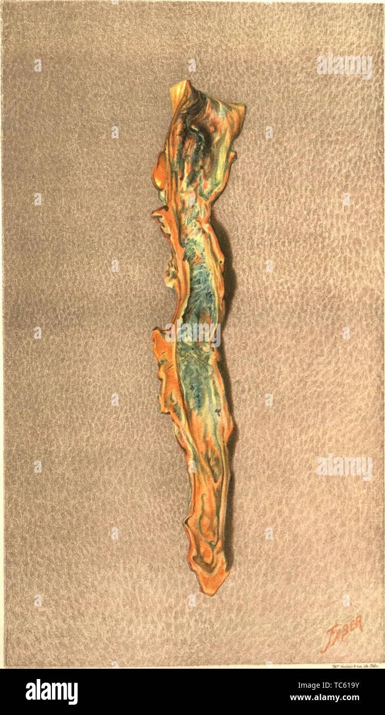 """Grabado de la obstrucción de la vena femoral, del libro """"El médico y quirúrgico de la historia de la guerra de la rebelión"""" por el ejército de los EE.UU. la Oficina del Cirujano General, 1883. Cortesía de Internet Archive. () Imagen De Stock"""