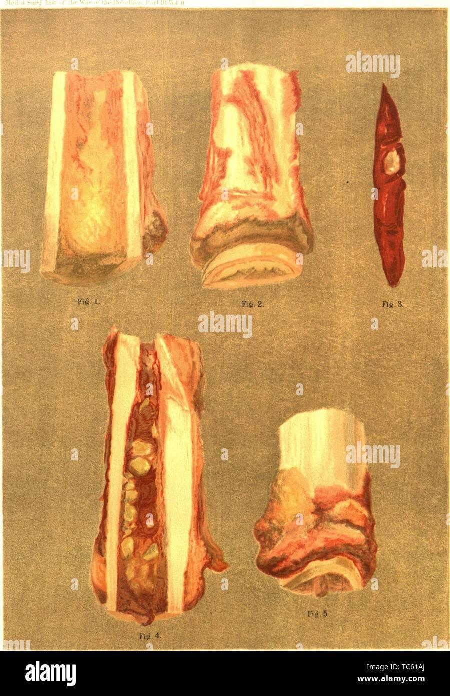"""Grabado de los resultados de la osteomielitis, del libro 'La historia médica y quirúrgica de la guerra de la rebelión"""" por el ejército de los EE.UU. la Oficina del Cirujano General, 1883. Cortesía de Internet Archive. () Imagen De Stock"""