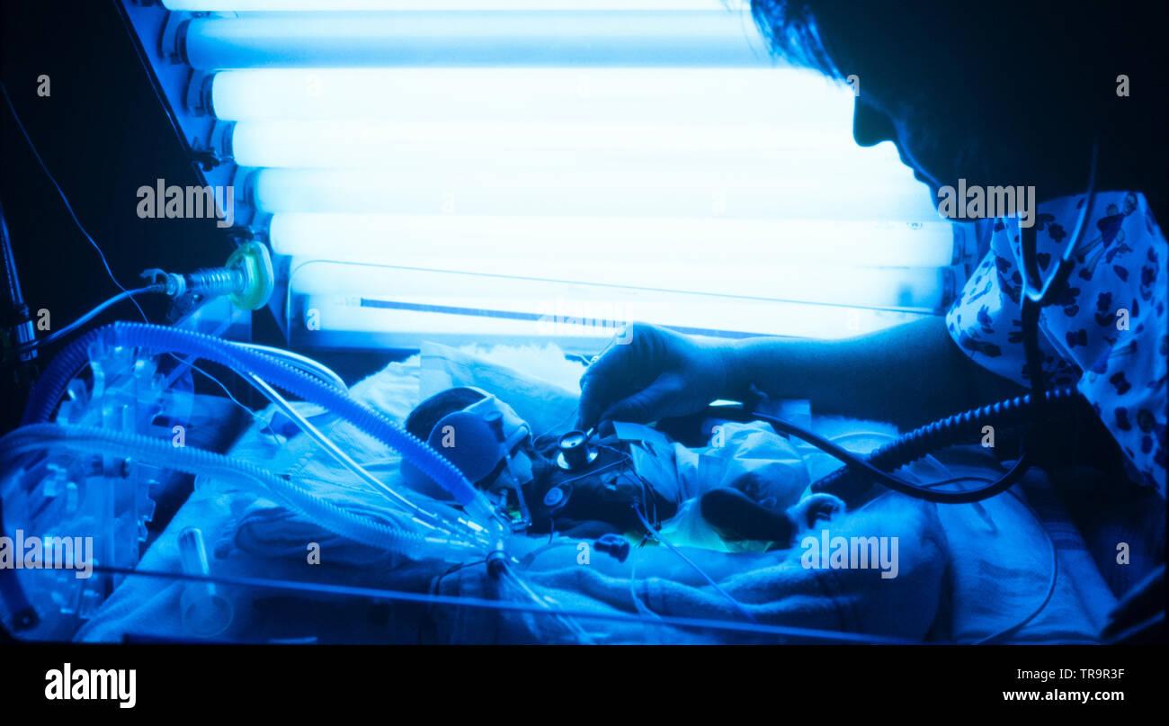 Bañado en azul la luz ultravioleta, un bebé prematuro es supervisada por una enfermera de cuidados intensivos neonatales del hospital Foto de stock