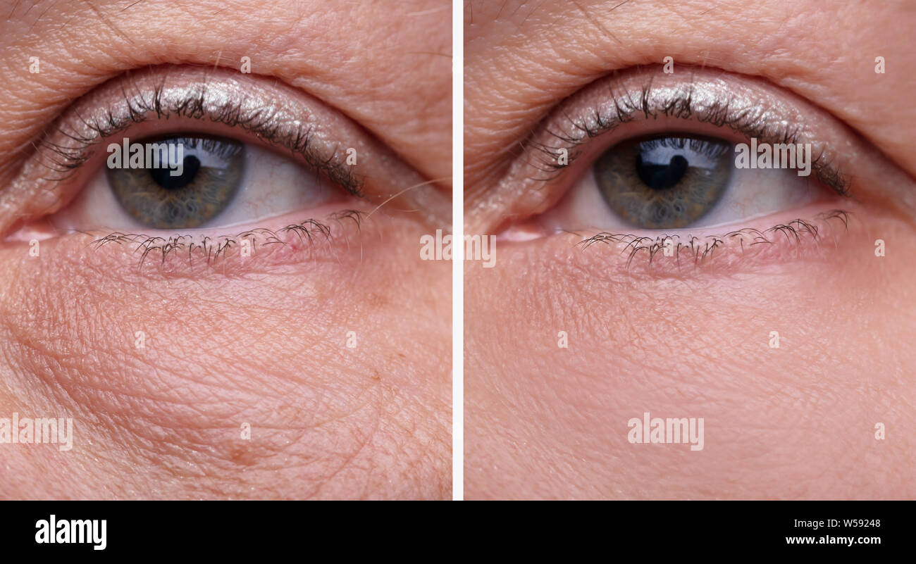 Cierre de Bolsas de los ojos de la mujer antes y después del