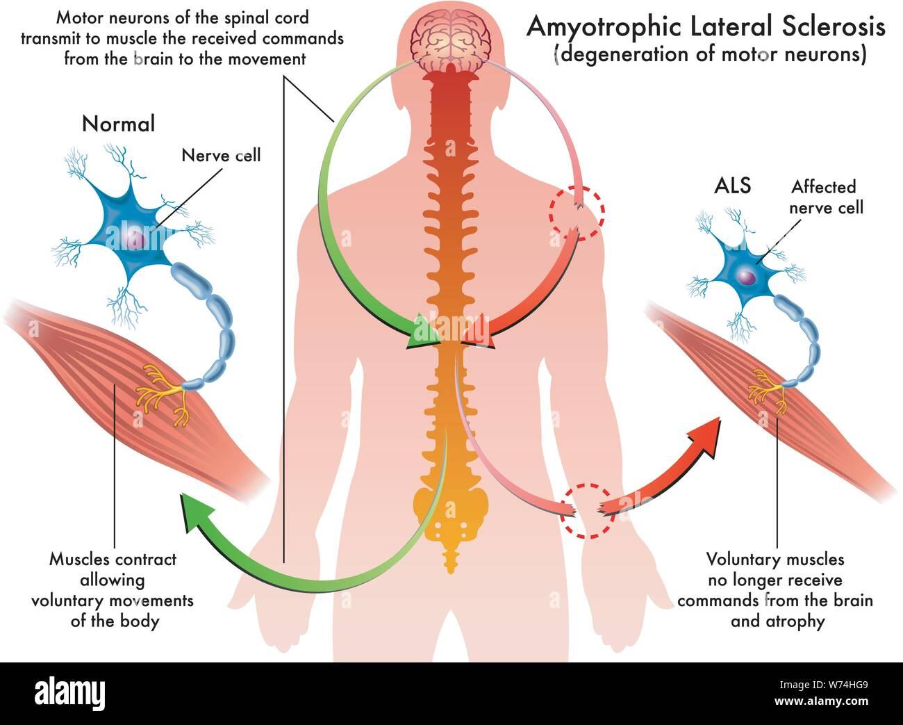 Ilustración médica de los síntomas de la esclerosis lateral amiotrófica (ALS) Ilustración del Vector
