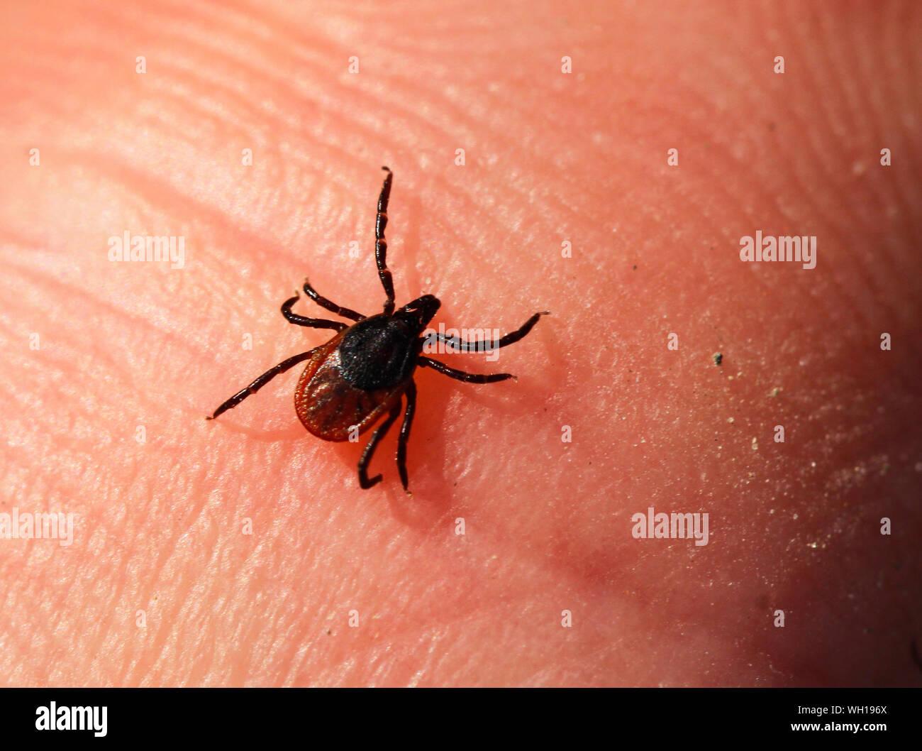 Hembra ricino garrapata Ixodes ricinus, caminando sobre la piel humana y buscando comida de sangre. Foto de stock