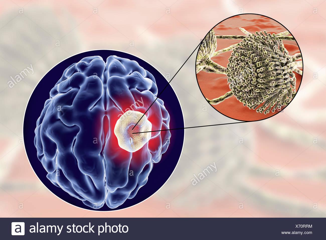 Aspergiloma del cerebro y la vista cercana de hongos del género Aspergillus, equipo de ilustración. También conocido como micetoma, o bola de hongos, esta es una lesión intracraneal, producidas por los hongos Aspergillus en pacientes inmunocomprometidos. Foto de stock
