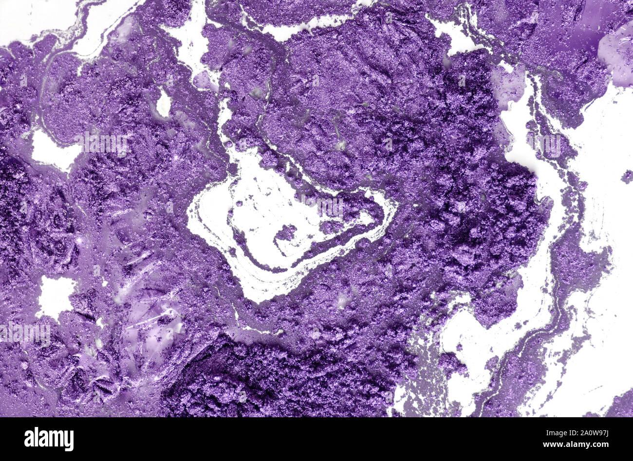 L'adénocarcinome peu différencié de la lumière intestinale, micrographie, photo sous microscope Banque D'Images