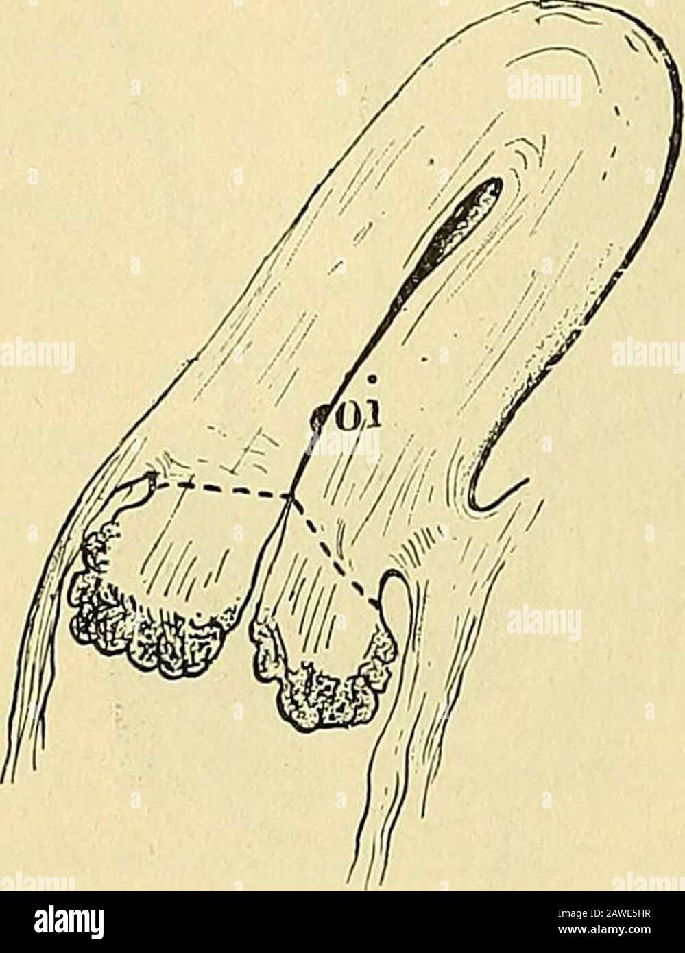 Traité de gynécologie clinique et Opéra . © du museau de poche. 1 nos les sultats obtenus par Verneuil voir p. 382, note 2. 2 KÅberlé. Traitement des cancers de la matrice -par Vhyslírotomie (Gazette Hebd. Deméd., 26 février 1886). 3 W. H. Baker (Amérique JOURN. Of Obstelr., 1882, p. 265, et 1886, p. 184). Pozzi. 25 386 VIVRE V. élevée » (amputation élevée) du col suivie de cétération ignée Ely vandeWarker1 Opère levidment, puis cauteure with le chlorure de zinc.Mais cest Schroder2 qui a donné le plus de prolongation à ce procesé,qui en a le plus de netteposment é les i Banque D'Images