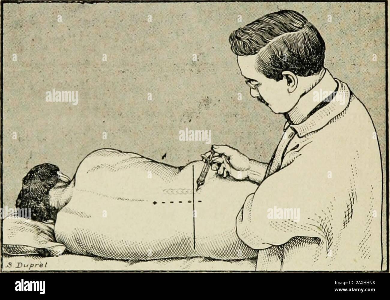 Contribution à l'ʹetude de l'anesthʹesie paravertébrale en brugrie gastrique et intestins . ousser lentement linjection commeil est dit plus halit. Pour la paravcrtêhraie luinbuirc, noir techniqueest à peu près celle de Pauchet, Sourdat et Labouré.piquer laiguille à 3 cm. De la ligne médiane, en re-gard de langle droit de lapisse pinéeux,prendre acte lapsus lapsus-lapsus, neophyse en-leitar, hre-leitar, negder, negder, negder, negder, negans, negder an, negder, negder, behried, negder an, behre-behre-beh Lenfoncerde 2 à 3 cm. Et là injecteur 5 à 6 c. de la solution en (i) Gaston Labat. — Palhogénie de la Banque D'Images